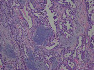 犬の乳腺腫瘍のHE染色像